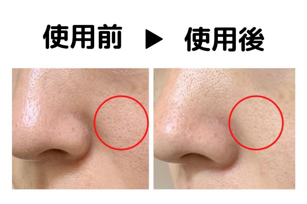 BEPLAINの洗顔フォーム:緑豆弱酸性クレンジングフォームを実際に使ってみた感想